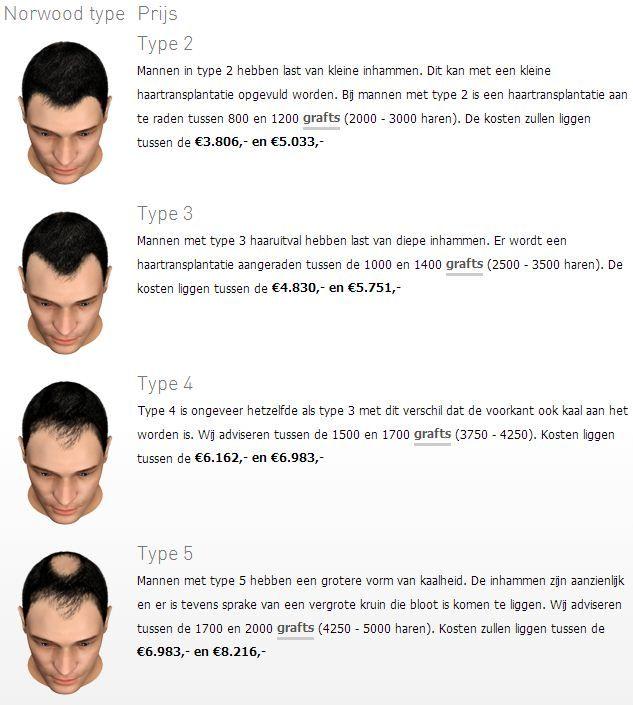 transhair-haartransplantatie-prijs