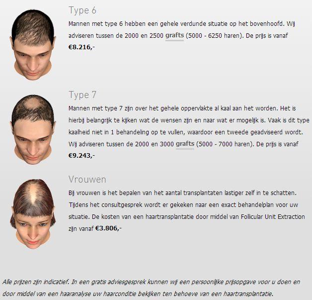 transhair-haartransplantatie-prijs1