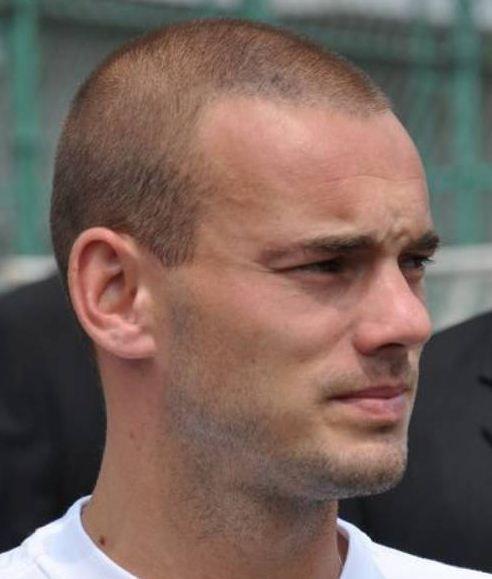 Haartransplantatie Wesley Sneijder.