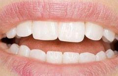 Tanden bleken.