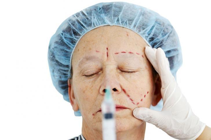 Wat doet Botox met je rimpels?