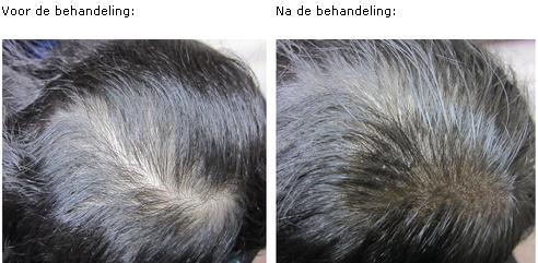Micro Hair Pigmentation haaruitval.